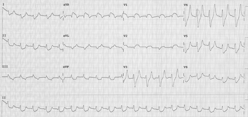 EKG Hyperkalemia 1