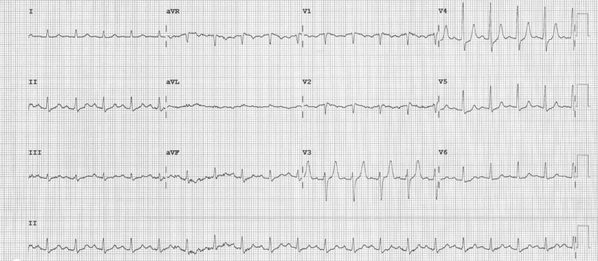 EKG Hyperkalemia 2